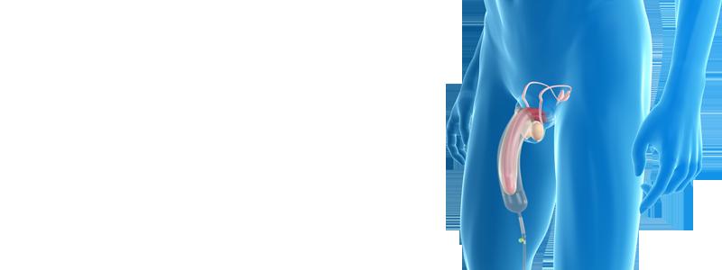 permanente penisvergroting